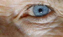 Allergie beschermt tegen slechtziendheid op latere leeftijd