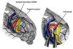 Groen-geel=trigeminus-zenuw