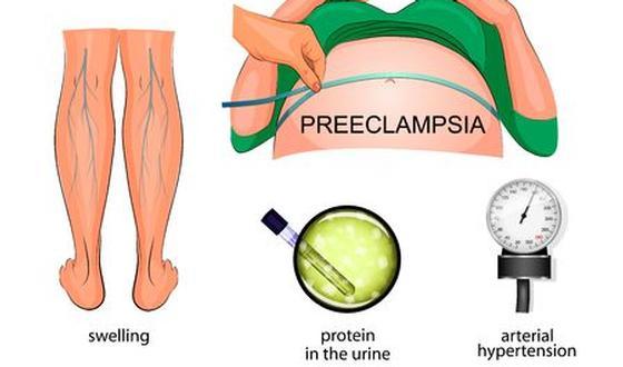 Pre Eclampsie Zwangerschapsvergiftiging Eenvoudige Versie