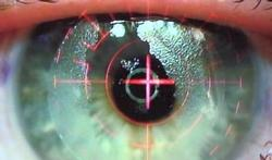 Refractieve oogchirurgie