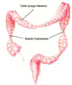 ziekte van crohn klachten