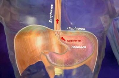 Drukkende pijn middenrif zwanger