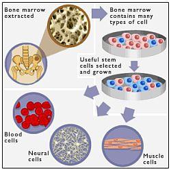 Gebruik van volwassen stamcellen uit beenmerg